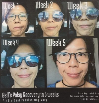 bells palsy before and after face yoga