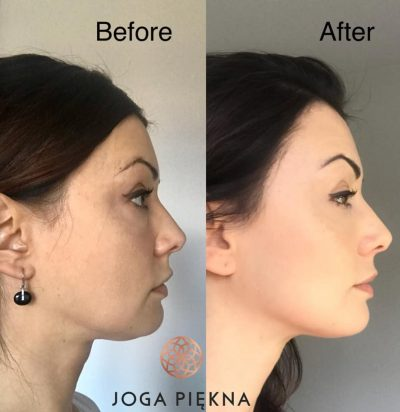 before and after face yoga profile