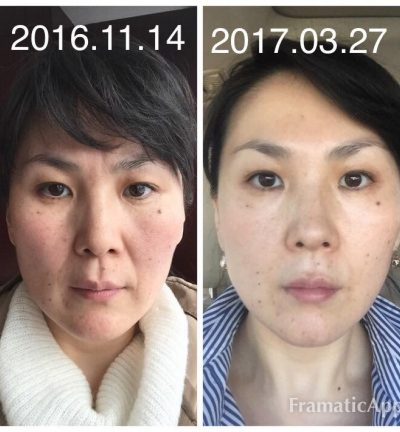 before and after face yoga